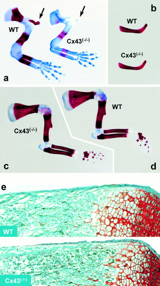 Development of the appendicular skeleton in Cx43−/− embryos. Front limbs at (a) E14.5, (b) clavicle at birth, and (c and d) front limbs at birth were stained with alizarin red/alcian blue. Note, the delayed mineralization of the scapula and the long limb bones (humerus, radius, and cubitus) in the mutant embryos at (a) E14.5 compared with (c and d) normal birth. Also, note the lack of both intramembranous and endochondral ossification of the clavicle, present only as a small cartilaginous template in the (a, arrows) Cx43−/− animals at E14.5. However, the clavicles appeared normal at (b) birth. (e) Longitudinal sections of safranin O/fast green–stained femurs of wild-type and Cx43−/− neonates. The size and morphology of the growth plate is apparently normal, as is the primary spongiosa in the homozygous mutant bone.