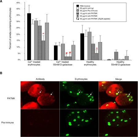 Affinity-Purified Anti-PATMK Antipeptide Antibodies Block Erythrophagocytosis by E. histolytica(A) Phagocytosis of calcium-treated or healthy erythrocytes by amebae was assayed in the presence of PBS (black), 50 μg/ml anti-Gal/GalNAc lectin light subunit (Lgl) (white), pre-immune (gray), 10 μg/ml anti-PATMK (horizontal hatch), 50 μg/ml anti-PATMK (vertical hatch), and 50 μg/ml anti-PATMK serum pre-absorbed with 25 μM of peptide (diagonal hatch). Data are reported as means ± SD. p Values were determined by a two-tailed t-test compared to controls (*, p < 0.003 compared with pre-immune in M199s; #, p < 0.046 compared to pre-immune in 50 mM D-galactose; †, p < 0.002 compared to pre-immune in M199s [healthy erythrocytes], n = 6).(B) E. histolytica trophozoites interacting with CFSE-labeled erythrocytes were stained with pre-immune or anti-PATMK serum, magnified 100×.