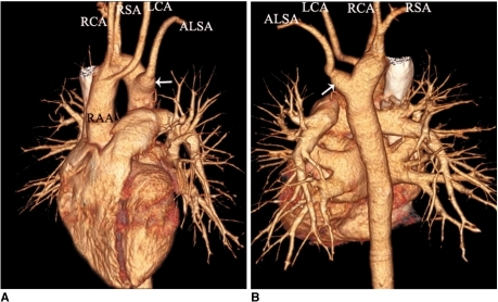 Right aortic arch with aberrant left subclavian artery in 45-year-old asymptomatic woman is shown. Anterior (A) and posterior (B) volume rendering images show right aortic arch (RAA) with aberrant left subclavian artery (ALSA) associated with Kommerell's diverticulum (arrows) at its origin. First branch arising from aortic arch is left carotid artery (LCA), which is followed by right carotid artery (RCA), right subclavian artery (RSA) and ALSA.