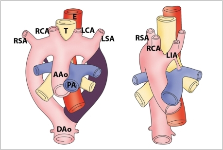 Diagram of development of right aortic arch with mirror image branching. Anomaly results from interruption of dorsal segment of left arch between left subclavian artery and descending aorta with regression of right ductus arteriosus in hypothetical double aortic arch. AAo = ascending aorta, DAo = descending aorta, PA = pulmonary artery, T = trachea, E = esophagus, RSA = right subclavian artery, RCA = right carotid artery, LCA = left carotid artery, LSA = left subclavian artery, LIA = left innominate artery