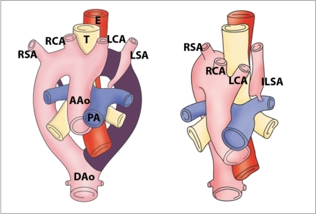Diagram of development of right aortic arch with isolated left subclavian artery is shown. Anomaly results from interruption of left arch at two levels; one level is between left common carotid and left subclavian arteries and other level is distal to attachment of left ductus. Left subclavian artery does not have connection with aorta, but is connected to pulmonary artery by left ductus arteriosus. AAo = ascending aorta, DAo = descending aorta, PA = pulmonary artery, T = trachea, E = esophagus, RSA = right subclavian artery, RCA = right carotid artery, LCA = left carotid artery, LSA = left subclavian artery, ILSA = isolated left subclavian artery