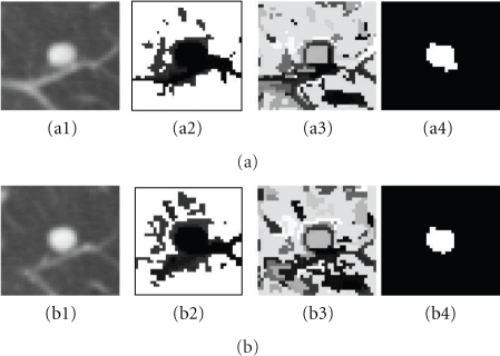 Example of cost functions. (a1, b1) 3D attached nodule in two contiguous slices in CT; (a2, b2) unary cost; (a3, b3) pairwise smoothing cost; (a4, b4) minimization of both energy terms based on (5).