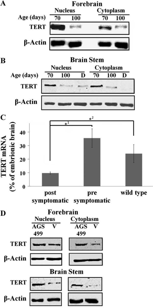 Expression of TERT protein in the FB and BS of SOD1 Tg mice before and after disease onset and the effect of AGS-499 treatment on its expressionNuclear and cytoplasmic proteins extracts were prepared from the FB and BS regions (A,B,D) and total RNA was extracted from the BS regions (C).A-B. Extracts derived from SOD1 Tg mice at the pre-symptomatic stage (40–70 days), after disease onset (100 days), before death (neurological score 5) were analysed (25 µg) by Western blotting using anti TERT or anti-β actin antibodies.C. TERT RNA transcripts were detected by Real time PCR, normalized to β-actin and the quantification of TERT expression was calculated relatively to the value obtained for mouse embryonic brain (E17). The results are mean ± s.e.m., n = 3–9 per group, Student's t-test *1p = 0.063, *2p = 0.006.D. Extracts derived from AGS-499 treated or vehicle treated SOD1 mice at the age of 100 days were analysed (25 µg) by Western blotting using anti TERT or anti-β actin antibodies.
