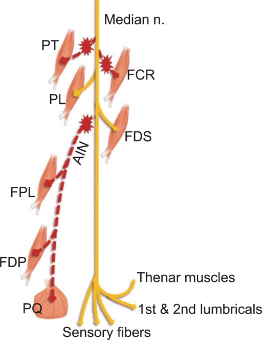 Schematic Diagram Of Possible Injury Mechanism Of This Open I