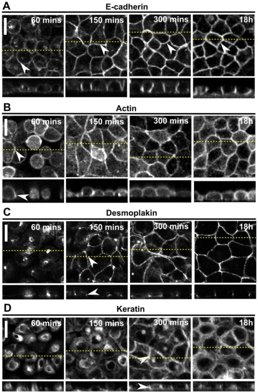The timescale for formation of adherens junctions coincides with the establishment of tissue-level tension but the timescale for desmosome assembly does not. In all panels, the upper images show a single xy confocal plane and the lower images show a single zx profile. The location of zx profiles is shown by dashed yellow lines on the xy images, and the position of intercellular junctions is indicated by white arrowheads. The time after replating is indicated on each image. Scale bars: 10 µm. (A) Localisation of E-cadherin–GFP in cells reforming monolayers. (B) Localisation of F-actin in cells reforming monolayers. (C) Localisation of desmoplakin in cells reforming monolayers. (D) Localisation of keratin 18 in cells reforming monolayers.