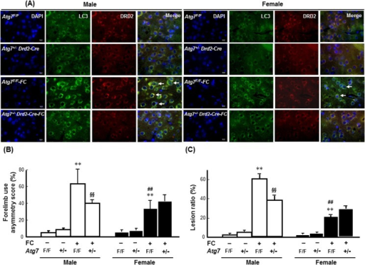 Knockout of Atg7 in DRD2 neurons decreased FC-induced striatal injury in male and female mice.(A) Atg7 KO decreased LC3 immunoreactivity in the DRD2 neurons. The images were captured using TissueFAXS. Arrows indicate LC3 immunoreactive DRD2 neurons. (B) Atg7 KO decreased FC-induced behavioral deficits in males but not in females. (C) Atg7 KO decreased the lesion ratios caused by FC infusion in males only. The data are expressed as the means ± SDs (n = 6). **p<0.01 compared with the sex-matched Atg7F/F groups; ##p<0.01 compared with the FC-infused Atg7F/F male mice. §§p<0.01 compared with the FC-infused Atg7F/F male mice.