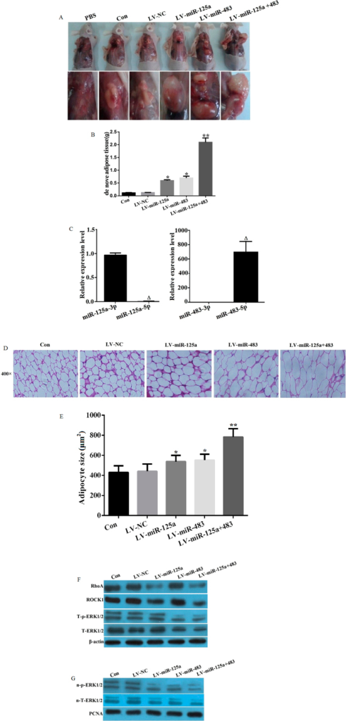 miR-125a-3p and miR-483-5p regulate RhoA/ROCK1/ERK1/2 signaling and promote mouse de novo adipogenesis.hADSCs were transfected with a lentiviral vector containing pre-miRs of miR-125a (LV-miR-125a), miR-483 (LV-miR-483), or negative control miR (LV-NC) and transplanted to the back subcutaneous tissues of nude mice with the transfected hADSCs or non-tranfected hADSC as control group (Con) or injection of PBS. After 5 weeks of self-differentiation, (A) De novo adipose tissue formation was observed (n = 5); (B) The weights of the de novo adipose tissues were measured (n = 5); (C) The expression levels of miR-125a-3p/5p and miR-483-3p/5p in de novo adipose tissue were detected by real-time PCR (n = 5); (D) The de novo adipose tissue was stained to observe the histology (n = 5); (E) Adipoctye size were analyzed by ImageJ software (F) The protein expression levels of RhoA, ROCK1, total ERK1/2 (T-EKR1/2), and phosphorylated ERK1/2 (T-p-EKR1/2) were analyzed by western blot; and (G) Total nuclear ERK1/2 (n-T-ERK1/2) and p-ERK1/2 (n-p-ERK1/2) were analyzed by western blot. All measurements were preformed by three independent experiments. *p < 0.05, **p < 0.01 compared to control or LV-NC group. Δp < 0.01 compared to miR-125a-3p or miR-483-3p group.