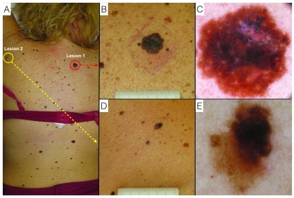 Melanoma and dysplastic nevus.A. Clinical overview of the patient.B. Lesion 1: Melanoma - naked-eye clinical close-up.C. Lesion 1: Melanoma - digital dermoscopy view.D. Lesion 2: Dysplastic nevus - naked-eye clinical close-up.E. Lesion 2: Dysplastic nevus - digital dermoscopy view.