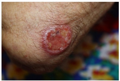 - Round ulcer with infiltrated borders in the right elbow.