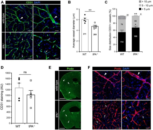 Decreased number of large diameter vessels in tPA−/− brains. Immunofluorescent staining of murine brain sections from tPA−/− deficient mice n = 5) and wild-type (WT) littermate controls (WT, n = 5) with (A–D) the endothelial cell marker CD31 and (E–F) podocalyxin (Podo) showed fewer large diameter vessels (arrowheads) and increased number of small diameter vessels (arrows) in tPA−/− mice compared to WT littermate controls. Quantification of the CD31 staining from four confocal Z-stacks per animal revealed that the average vessel diameter was significantly lower in tPA−/− brains as compared to WT littermate controls (B) and that there was a significant redistribution toward smaller diameter vessels in the cerebrovasculature of tPA−/− mice (C). The number of vessels analyzed is displayed on the respective bars. There was no significant difference in the overall amount of CD31 positive staining as quantified by pixel intensity (D). Staining with podocalyxin confirmed the results seen with staining for CD31 (E–F). The data shown are representative quantifications of four to nine maximum intensity confocal Z-stacks per animal from four independent staining experiments with CD31 and Podocalyxin, respectively. The images display (A,F) maximum intensity projections generated from confocal Z-stacks (22 μm) and (E) stitched tiling of epifluorescent images (taken with 10× objective). Cell nuclei were visualized with DAPI. Data presented as mean ± SEM. Statistical significance was determined by student's unpaired t-test. *P < 0.05; **P < 0.01; ns = non significant relative to control. Scale bars (A,F) left panels, 50 μm; right panels, 20 μm, (E) 1 mm. Arbitrary units, A.U.