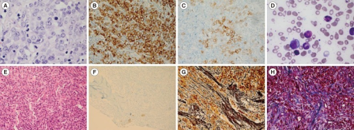 Lymph node (LN) and bone marrow (BM) immunohistochemistry. (A) Myeloid sarcoma in an inguinal LN showing increased immature cells with less cytoplasms, round nuclei, and distinct prominent nucleoli (Hematoxylin & Eosin [H&E] stain, ×400); (B) Increased immature cells in an inguinal LN positive for myeloperoxidase (×400) and (C) CD117 (×400); (D) Diluted BM aspiration showing normal hematopoietic cells (Wright stain, ×1,000); (E) BM biopsy showing cellularity of nearly 100% (H&E stain, ×400); (F) Megakaryocytes positive for CD61 without proliferation and atypia (×200); (G) BM biopsy showing grade 2 myelofibrosis (on a 0-3 scale), with diffuse and dense reticulin fibers (Reticulin stain, ×400); (H) focal bundles of collagen fibers (Masson Trichrome stain, ×400).