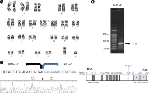 The t(8;9)(p22;p24) translocations and PCM1-JAK2 fusion gene. (A) Karyogram of bone marrow showing 46,XY,t(8;9)(p22;p24)[20]; (B) Reverse transcription-PCR product of the PCM1-JAK2 gene from bone marrow; (C) Genetic sequence and schematic representation of the chimeric PCM1-JAK2 gene.
