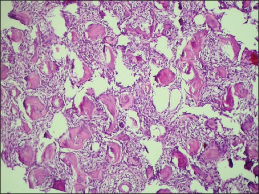 Photomicrograph showing spherical structures having basophilic in the center and eosinophilic in periphery