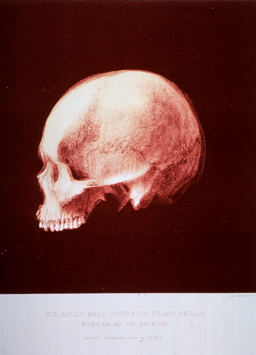 <p>Black and white print of one of 6 male adult Sandwich Island skulls. This print is no. 16b that appears in &quot;On composite photography as applied to craniology; on measuring the cubic capacity of skulls, memoirs of the National Academy of Sciences; volume 3, 13th memoir&quot; by J.S. Billings and Washington Matthews.</p>