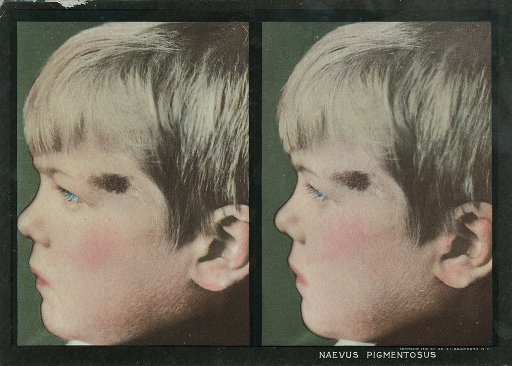 <p>Stereographies of a boy's side view with a pigmentary mole by his left eye.  Stereoscopic skin clinic.</p>