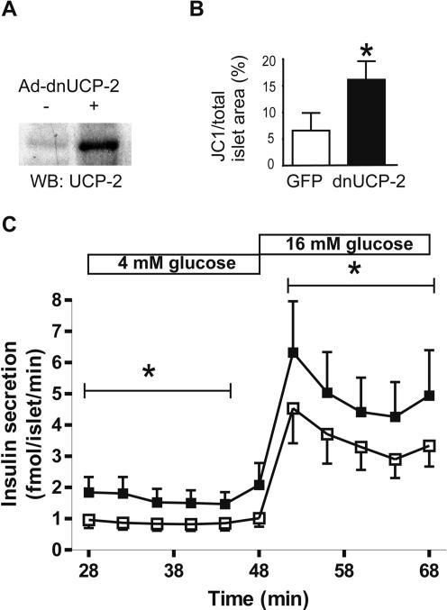 Dominant negative UCP-2 enhances insulin secretion in human islets.A Levels of UCP-2 protein in human islets following adenoviral misexpression of dn-UCP-2 (+) or GFP (−). B DnUCP-2 increases mitochondrial membrane potential. Human islets grown on extracellular-matrix-coated slides were transduced with Ad-dnUCP-2 or Ad-GFP. Mitochondrial membrane potential was detected by live staining with JC-1, and the JC-1 and islet cell area were measured using Image-Pro Plus software. Bar graph shows the percentage of JC-1 (area) divided by total islet area (t-test; *, p<0.05 relative to control). C Human islets were transduced with Ad-dnUCP-2 (▪) or Ad-GFP (□, control) and cultured in suspension at 5.5 mM glucose before perifusion. Islets were perifused at 4 mM and 16 mM glucose and insulin concentrations were measured every 4 min. Results are of four independent experiments using four separate human islet donors. Data are presented as means±SE and analyzed by t-test, *, p<0.001.