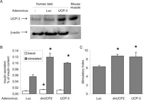 UCP3 over expression in human islets increases glucose-stimulated insulin secretion.A Western blot analysis of UCP-3 expression in transduced islets. B Isolated human pancreatic islets were cultured on extracellular matrix-coated dishes and transduced with adenoviruses expressing control virus (luciferase, Luc), UCP-3 or dnUCP-2. Basal and stimulated insulin secretion indicate the amount secreted during 1-hour incubations at 2.8 (basal) and 16.7 mM (stimulated) glucose following the 2-day culture period after transduction, normalized to whole islet insulin content. C Stimulatory index denotes the amount of stimulated divided by the amount of basal insulin secretion. Data represent results of two different experiments from two different organ donors in quadruplicate. Results are means±SE, *p<0.05 compared to control.