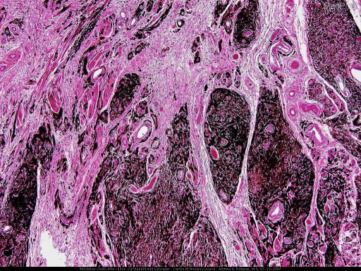 Histology of a patient with Primary Malignant Melanoma of Orbit.