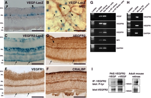 VEGF signaling in the adult retina.(A) Sections of eyes from adult VEGF-lacZ mice stained for LacZ using x-gal (blue) revealed VEGF expression in the GCL (arrowheads) and INL layer (asterisks). (B) Flat-mounted retinas from adult VEGF-lacZ mice stained for lacZ (blue) and NG2 (brown) demonstrated VEGF expression by NG2-positive cells associated with microvessels (arrowhead) and by some astrocytes (arrow) in the GCL. (C) Sections of eyes from adult VEGFR2-lacZ mice stained for lacZ revealed expression of VEGFR2 in the GCL, in the INL (asterisks), and in the photoreceptors where a strong lacZ staining was observed in the inner segments (arrows). (D) Immunohistochemistry for VEGFR2 in sections of adult retina revealed expression in vascular cells (arrowhead), in Müller cells processes, and in the IS of the photoreceptors (arrows). (E) Immunohistochemistry for VEGFR1 revealed a spotty expression in the IPL and OPL. VEGFR1 was also detected in the photoreceptor IS. (F) Staining of Müller cells using CRALBP revealed an expression pattern similar to VEGFR2 (compare with D). (G) Expression of VEGF and its receptors, VEGFR1 and VEGFR2, by Müller cells was confirmed by RT-PCR of RNA from adult rat retina and isolated rat Müller cells. (H) Expression of VEGFR1 and VEGFR2 in photoreceptors (PR) isolated from adult mouse retinas. (I) Immunoprecipitation (IP) of VEGFR2 from pooled adult mouse retinas, followed by immunoblotting for phosphorylated tyrosine revealed VEGFR2 expression (bottom panel) and activation (top panel) in the adult retina. As a control, lysates of porcine aortic endothelial (PAE) cells overexpressing VEGFR2 either untreated or stimulated with VEGF were immunoprecipitated and immunoblotted as described above. GCL: ganglion cell layer, IPL: inner plexiform layer, INL: inner nuclear layer, OPL: outer plexiform layer, ONL: outer nuclear layer, IS: inner segment, OS: outer segment. Scale bar is 100 µm.