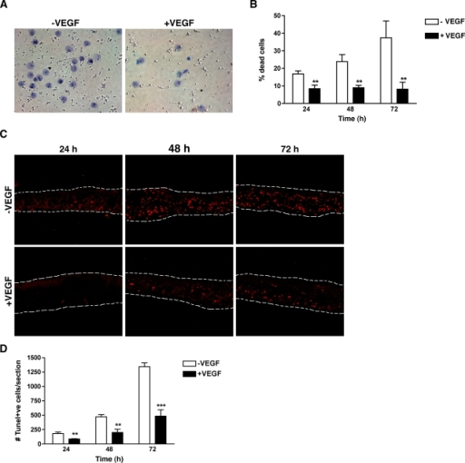 VEGF is a direct survival factor for photoreceptors.(A) Photoreceptors isolated from adult C57BL/6J mice were cultured on laminin-coated wells in absence or presence of 10 ng/ml VEGF165 for up to 72 hr. Addition of 10 ng/ml of VEGF165 decreased the number of dead cells identified by trypan blue staining. (B) Quantification of the percentage of dead photoreceptors based on the trypan blue exclusion assay revealed a significant protection from apoptosis by VEGF165 (n = 9). (C) ONL explants containing only the photoreceptor nuclei and IS were cultured in basal medium±10 ng/ml of VEGF165 for 24, 48 and 72 hr. Apoptotic cells were detected by TUNEL staining. (D) Quantification of TUNEL-positive cells per sheet revealed a significant decreased in the number of apoptotic photoreceptors in presence of VEGF (n = 6).