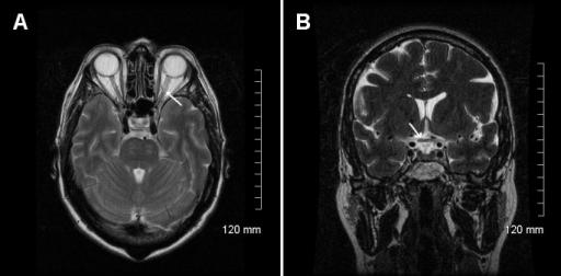 Patient\'s encephalic MRI. MRI of the optic nerve showed | Open-i