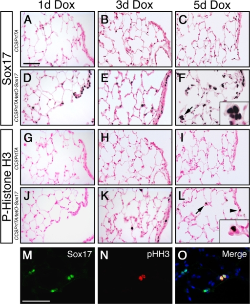 Sox17 induces proliferation of respiratory epithelial cells in the adult mouse lung.Immunohistochemistry was performed on lung sections from adult CCSPrtTA control (A–C; G–I) and CCSPrtTA/tetO-Sox17 (D–F; J–L) transgenic mice after treatment with Dox for 1, 3, and 5 days (d). (A–F) Immunostaining shows endogenous expression of Sox17 in endothelial cells and Sox17 transgene expression in bronchioles and alveolar type II cells (D–F). Hyperplastic cell clusters are evident by 5 d (arrow and inset, F). (G–L) Phospho-histone H3 immunostaining shows respiratory epithelial cell proliferation after 3 d of Dox treatment in Sox17 transgenic mice. Proliferative cells were detected in the peripheral lung (K–L; arrow and inset) and bronchioles (K–L; arrowhead). (M–O) Colocalization of Sox17 (M) and phospho-histone H3 (pHH3; N) is shown by dual-label immunofluorescence after 5 d Dox exposure. Nuclei are stained with DAPI (O; blue). Scale bars, 50 µm.