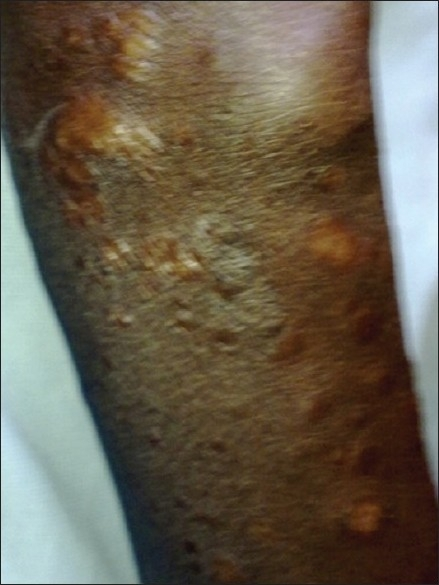 Post-treatment photograph after two month of treatment