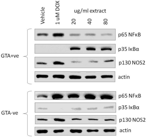 Western analysis of NFκB, IκBα and NOS2 in SW620 cells treated with three concentrations of GTA+ve and GTA-ve extracts and doxorubicin (DOX). Representative Western blots showing protein levels of NFκB, IκBα and NOS2 in SW620 cells treated with GTA+ve and GTA-ve extracts (see methods).