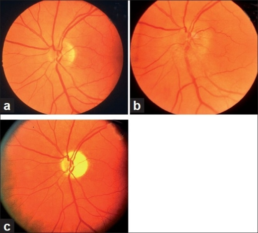 Fundus photographs of left eye of a 53-year-old man: (a) Normal disc before developing NA-AION, (b) with optic disc edema and hyperemia during the active phase of NA-AION, and (c) after resolution of optic disc edema and development of optic disc pallor (more marked in temporal part than nasal part)[16]