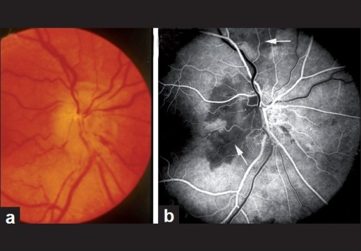 Fundus photograph (a) and fluorescein fundus angiogram (b) of right eye with NA-AION. (a) Optic disc edema, hyperemia and hemorrhages on optic disc; (b) fluorescein fundus angiogram shows non-filling of temporal part of the peripapillary choroid (arrow) and adjacent optic disc and the choroidal watershed zone (arrow)[36]