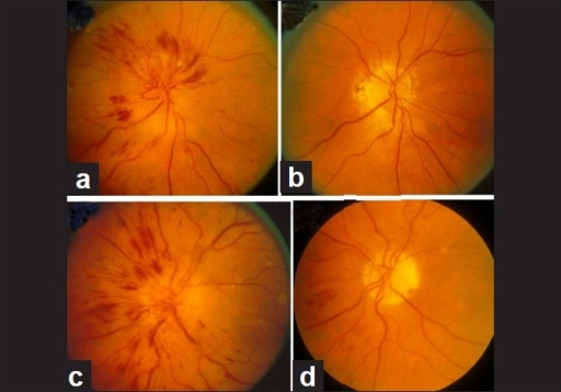 Fundus photographs of the both eyes of a 51-year-old diabetic woman, who developed NA-AION, first in the right eye (a, b) and 8 months later in the left eye (c, d). (a, c) Optic disc edema with marked telangiectatic vessels on the optic disc, multiple punctate peripapillary hemorrhages; (b, d) no edema, no abnormal vessels on the disc, and no peripapillary retinal hemorrhages on resolution[41]