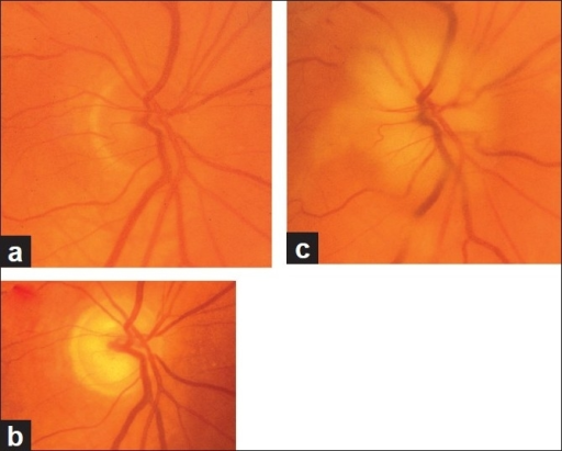 Fundus photographs of right eye with A-AION: (a) Before developing A-AION, (b) 1 week after developing A-AION with chalky white optic disc edema and (c) 4 months later showing optic disc cupping with a cup/disc ratio of 0.8 (note no cup in Fig. 11a before developing A-AION)[16]