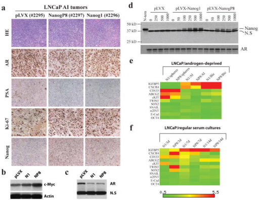 Molecular changes associated with NANOG-promoted AI phenotypes in LNCaP cellsa) H&E staining and IHC analysis of the molecules indicated in three LNCaP AI tumors (tumor tag numbers indicated in parentheses). b-c) Western blotting analysis of c-Myc (b) and AR (c) in AI LNCaP tumors. N1, pLVX-NANOG1 LNCaP AI tumor; NP8, pLVX-NANOGP8 LNCaP AI tumor. N.S, non-specific band (served as loading control). d) Western blotting analysis of Nanog (top; N.S, non-specific band) and AR in clone B2 LNCaP cells treated by the indicated concentrations of dox. e-f) Heatmap presentation of gene expression changes of 11 molecules in LNCaP cells cultured in either androgen-deprived conditions (e) or regular serum cultures (f). The mRNA levels for these and other molecules (see Supplemental Table S1 and S3 for details) were determined by qRT-PCR and the heatmaps generated using the Matrix2.png software. The color-coded bars (scale below) indicate the mRNA level in the NANOG overexpressing cells cultured under the indicated conditions relative to pLVX control cells cultured under the same conditions.
