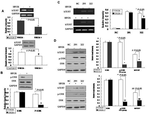 U0126 partially blocking the activation of Ras–MAPK signalling induced by TERE1 down-regulation(A) T24 cells treated with U0126 showed decreased hTERT expression in both mRNA and protein levels. (B) ERK phosphorylation is inhibited by U0126 in T24 cells. (C) Human L02 cells transfected with TERE1 291- and 322-siRNA oligos and pretreated with U0126 (middle panel) showed decreased mRNA level of hTERT compared with samples without U0126 (upper panel). (D) Human L02 cells transfected with TERE1 291- and 322-siRNA oligos were treated with U0126, which decreased hTERT expression and ERK phosphorylation. The intensities of the bands were compared in the diagram.
