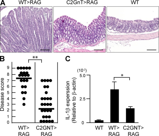 Pathogenic role of CAG in colitis of CD45RB model. CD4+CD45RBhigh naive T cells were purified from the spleen of WT (WT>RAG) versus T/C2GnT Tg (C2GnT>RAG) mice, and they were adoptively transferred i.v. into Rag1−/− mice. The recipients were sacrificed at 8 wk after transfer. (A) Representative colonic histologies (×10 objective) are shown. Colon of donor WT mouse is shown as normal control. Bars, 200 µm. (B) Disease scores evaluated by a combination of macroscopic and microscopic examinations are summarized. Each dot represents individual recipient. **, P < 0.0001. (C) Expression levels of IL-1β in the colonic tissues from WT mice and from Rag1−/− mice with transfer of WT-derived (WT>RAG) versus T/C2GnT tg–derived (C2GnT>RAG) CD4+ T cells are shown. n = 6/each group. *, P < 0.005.