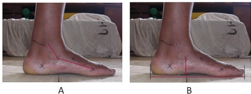 Static foot geometry.Figure 2A: Medial Angle. Angle between the center of the medial malleolus, the navicular tuberculum and the medial center of the first distal metatarsal head. Figure 2B: Navicular height/foot length ratio.