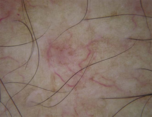 Dermoscopy: thin and tortuous linear vessels, mild erythema and fine pigmentnetwork