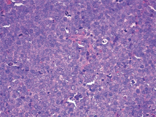 Tumour biopsy showing poorly differentiated cells with scarce cytoplasm and vesicular nuclei with inconspicuous nucleoli. High mitotic index and apoptotic figures were present. Immunohistochemical reactions were positive for cytokeratin 8 and 20 and neuroendocrine markers (chromogranin, synaptophysin and CD56/NCAM); TTF-1 was not expressed (H&E stain, 40×).