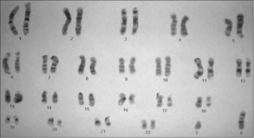 Karyotype from peripheral blood-Normal (46 XY)
