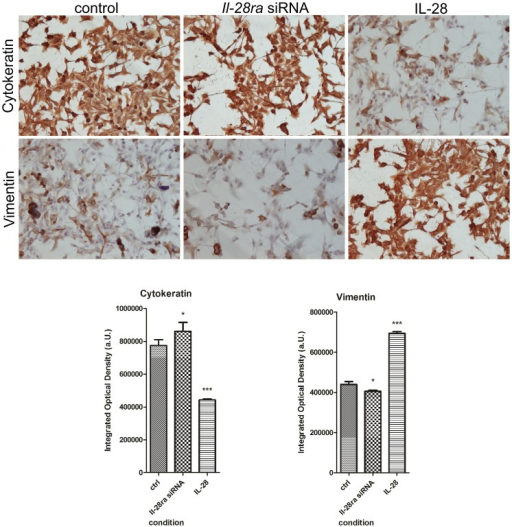 Changes in cytokeratin and vimentin expression.Representative pictures showing changes in expression of cytokeratin (upper panel) and vimentin (bottom panel) in P114 canine mammary control cells (mock-transfected), cells treated with Il-28ra-specific siRNA and cells treated with IL-28. Values that differed significantly are marked as * (P<0.05) or *** (P<0.001).