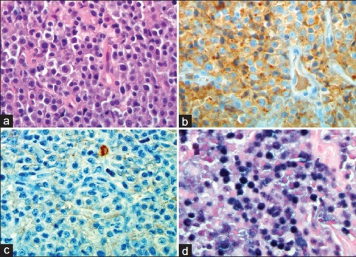 Histopathological findings (×400) (a) Hematoxylin- and Eosin-stained sections show infiltrative sheets of a typical plasmacytoid cells. kappa and (b) lambda (c) light chain immunohistochemistry shows kappa light chain restriction, consistent with a monoclonal process (d) In situ hybridization for Epstein-Barr virus-encoded RNA shows diffuse positivity