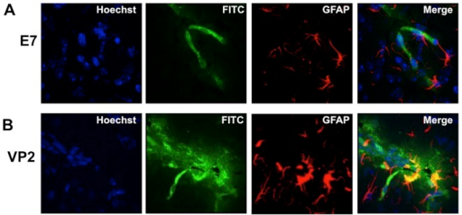 Increased astrocyte activation colocalizes with CNS vascular permeability post-induction of PIFS in perforin−/− mice reconstituted with perforin competent CD8 T cells.Representative confocal microscopic images illustrating astrocyte expression of GFAP in (A) E7 peptide-treated (n = 4) and (B) VP2121–130 peptide-treated (n = 6) perforin−/− mice reconstituted with perforin competent CD8 T cells. Mice treated with (B) VP2121–130 peptide displayed increased astrocyte activation, as measured by heightened GFAP expression, in areas of CNS vascular permeability when compared to (A) mock E7 peptide-treated negative control mice. CNS permeability is determined by leakage of intravenously administered FITC-albumin.