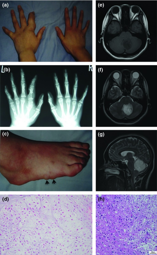 Clinical features of the patient with Maffucci syndrome. (a) Deformities of the left hand caused by cartilaginous tumors. (b) Plain X-ray image showing multiple cartilaginous tumors in many phalanges and metacarpal bones of the left hand. (c) Hemangiomas at the right lateral foot (arrows). (d) HE staining of cartilaginous tumors of the left hand. (e) T1-weighted MRI imaging of brain tumor. (f) T2-weighted MRI imaging of brain tumor. (g) Sagittal T2-weighted MRI imaging of brain tumor. (h) HE staining of brain tissues.