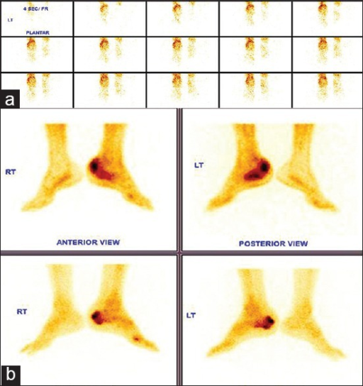 (a) Vascular phase images showing increased vascularity in left heel region and Figure 1 (b) Soft tissue and skeletal phase images showing diffuse increased methylene di phosphonate (MDP) uptake in the left calcaneum in three phase MDP bone scan of a suspected case of left calcaneal osteomyelitis