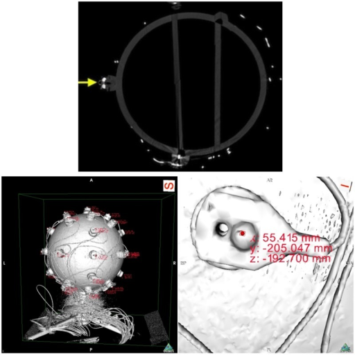 On top, a slice of the fiberglass sphere CT scan. The solid yellow arrow points at a sectioned electrode with a reflector on top. On the bottom, images of the sphere's reconstructed surface. On the left, and on the right a close up of an electrode. The pictures shows the reconstructed surface of the sphere and electrodes, obtained from the scan slices. The areas of red text are coordinates that are displayed when an investigator clicks on a part of the digitized model, in this case the top surface of the reflector markers. On the right, we can see the electrode with its reflector and corresponding displayed coordinates.