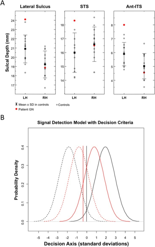 Sulcal Depth Values and Signal Detection Response Parameters.(A) Sulcal depth values for the lateral sulcus, STS and the anterior part of the ITS in the left (LH) and right hemisphere (RH) of patient GN and of the twelve age-, gender, and education-matched controls. (B) Signal detection parameters in patient GN (red lines) and averaged parameters in the twelve controls (black lines). High discrimination sensitivity between familiar and unfamiliar faces (da) is graphically represented by reduced overlapping between signal distributions (familiarity) (continuous lines) and noise distributions (unfamiliarity) (dashed lines). Response bias (ca) is represented by the vertical lines, with negative values indicating a loose response criterion (i.e., a tendency to favour familiarity responses).