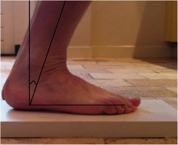 Measuring maximal dorsiflexion of the injured and healthy ankle