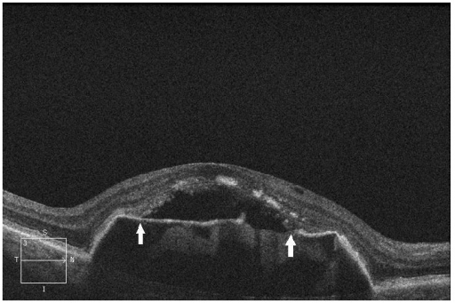 SD-OCT of a patient from the control group—preangiogenic dry from of AMD.SD-OCT of the right eye of a patient from the control group with the dry form of AMD 2.5 years after the start of follow-up, showing persistent DPED. DPED symmetrically transitions into the detachment of the IS/OS photoreceptor junction, localized between the two arrows, where the beginning and end of junction detachment are indicated. In addition, the detached IS/OS photoreceptor junction shows uneven reflectivity and thickness of the retinal layer, a sign of incipient degenerative changes of the IS/OS junction, which are considered to be the result of the lack of junction nutrition due to its increased distance from the RPE [10, 11].
