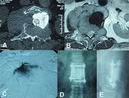 (A, B) Second preoperative computed tomography and magnetic resonance imaging showing recurrence of the tumor on the right side of the spine. (C) Preoperative vertebral tumor embolization. (D, E) Postoperative radiograph showing the titanium mesh and single pedicle screw.