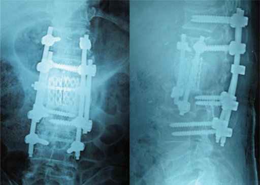 Postoperative radiography showing the posterior screw rod fixation.